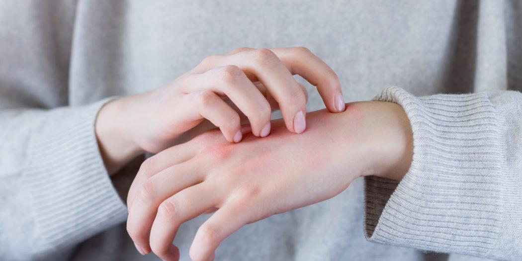 zbliżenie na kobiece zaczerwienione dłonie drapanie