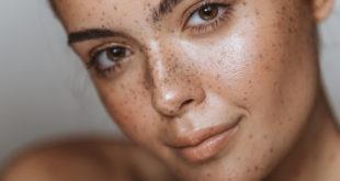 Kobieta z melasmą - brązowymi plamkami na twarzy