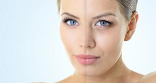 Już po 25 roku życia możemy zauważyć proces starzenia się skóry   fot.: Fotolia