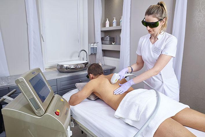 depilacja laserowa pleców mężczyzny