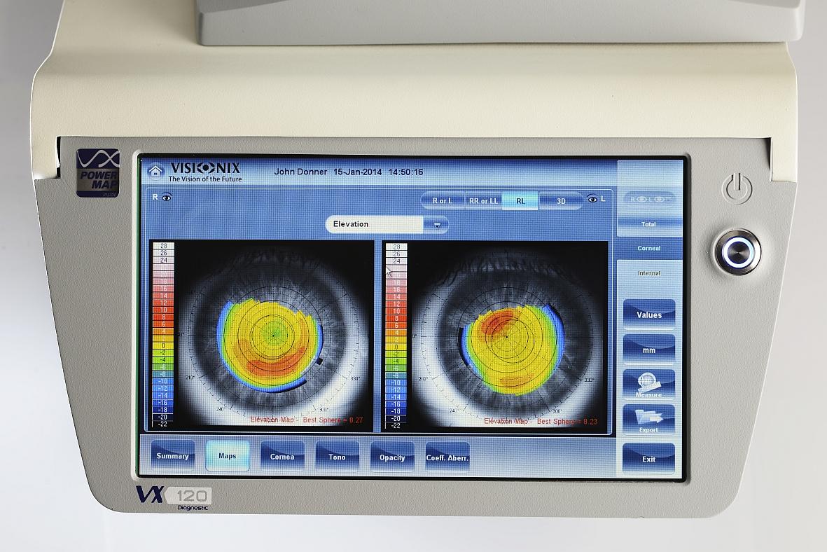 Ekran okulistycznej stacji diagnostycznej