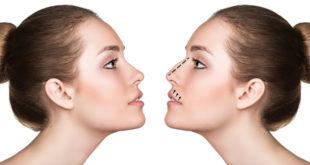 Operacja nosa