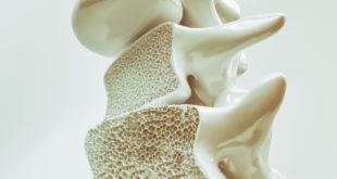 Osteoporosis osteoporoza kości