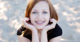 Młoda kobieta z aparatem ortodontycznym