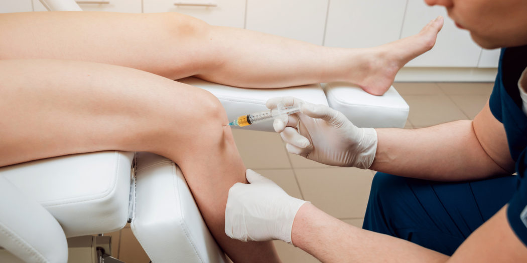 osocze bogatopłytkowe w ortopedii