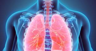 Leczenie raka płuc