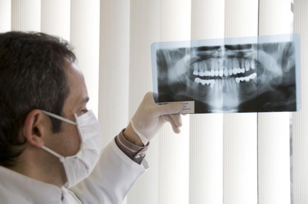 Zdjęcie rentgenowskie szczęki