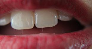 Usta - zęby