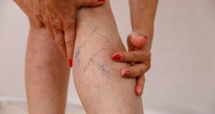 zbliżenie na kobiecą nogę z żylakami