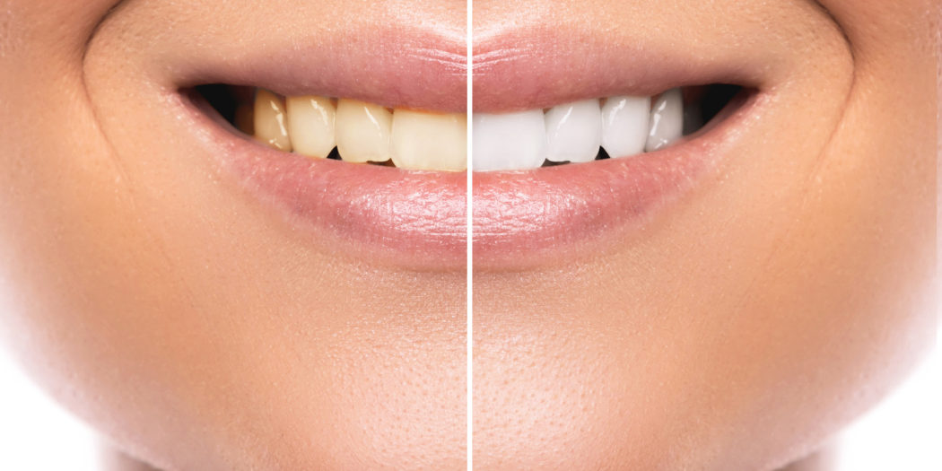 domowe sposoby na wybielanie zębów