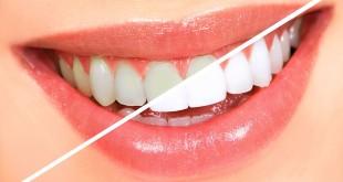 Efekt wybielania zębów metodą nakładkową w gabinecie stomatologii estetycznej